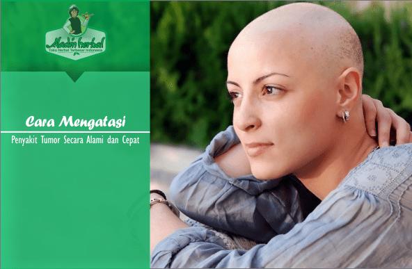 Cara Mengatasi Penyakit Tumor Secara Alami dan efektif