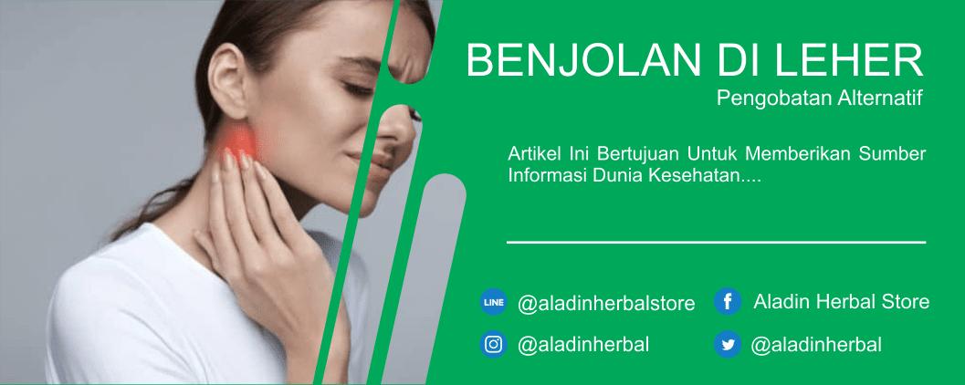 Benjolan Di Leher Kanan Dan Cara Mengobati - Aladin Herbal ...